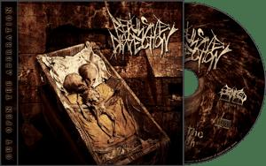 Image of Cut Open The Aberration CD