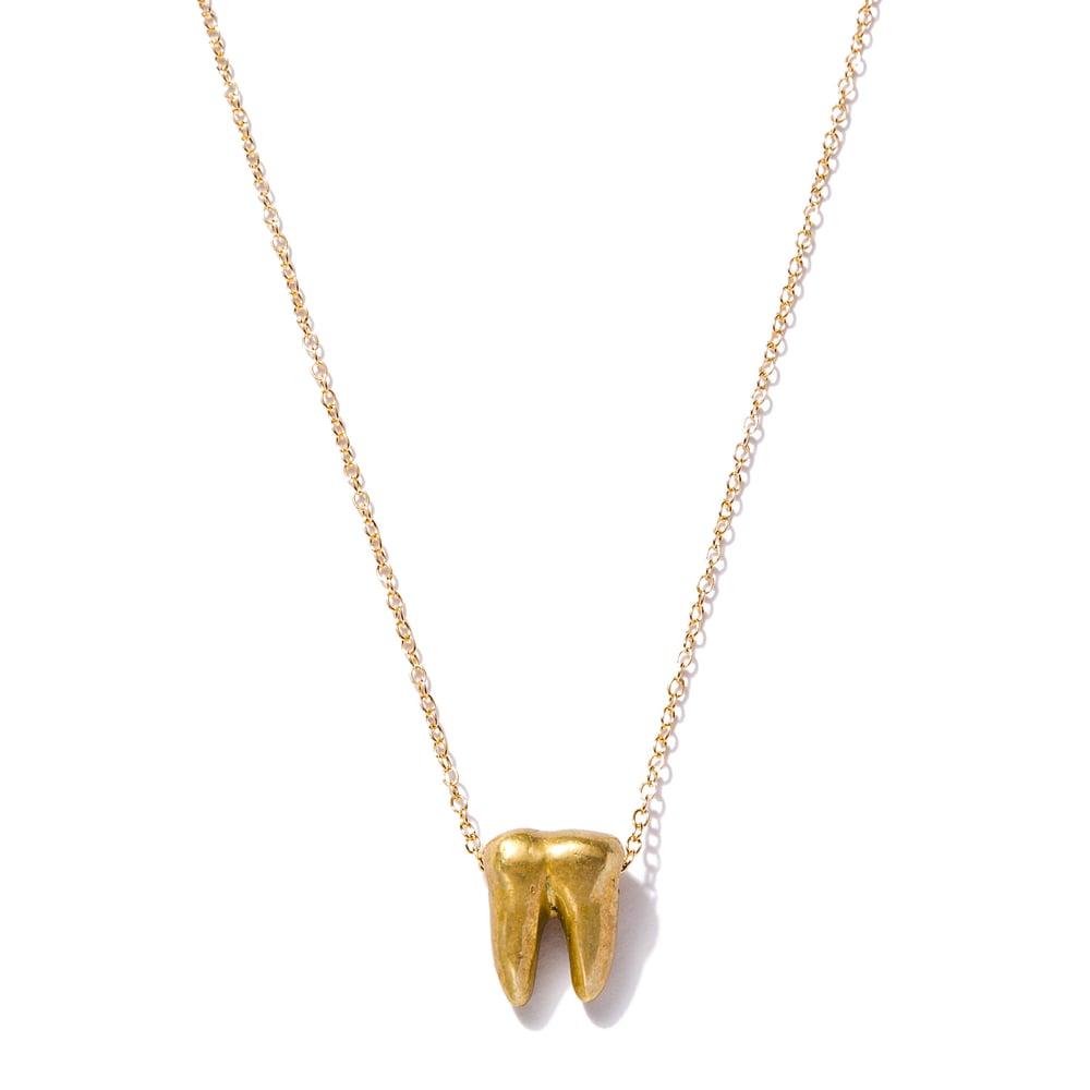 Image of Golden Molar