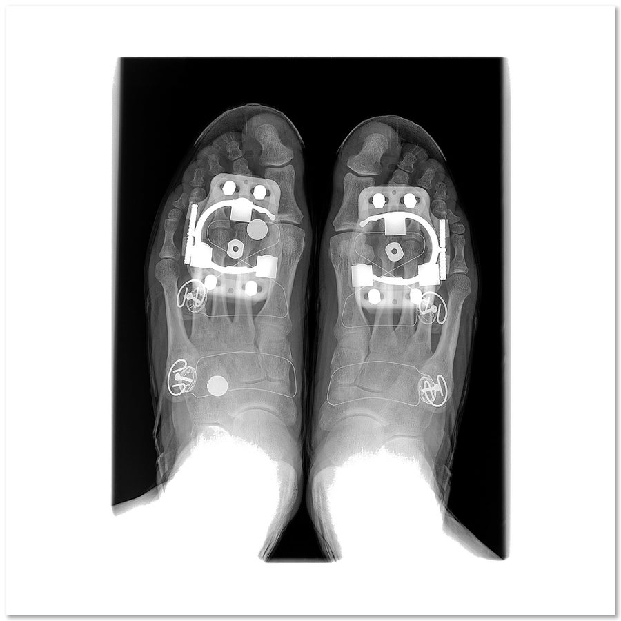 Image of Feet in Cycling Shoes