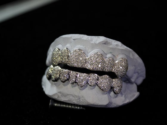 PERMANENT STYLE GOLD GRILLZ - SOLD PER TOOTH / STL GRILLZZ