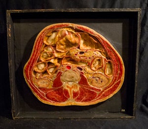 Image of SOLD: Antique Anatomical Wax Moulage #13