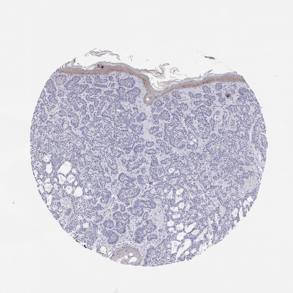 Image of Download Atlas Of Skin Diseases