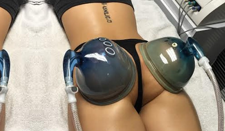 Image of Non Surgical Butt Lift