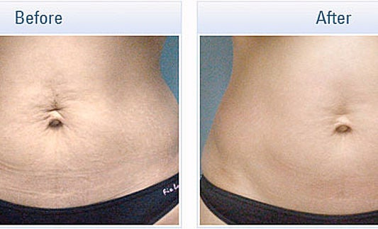 Image of Radio Frequency Skin Tightening