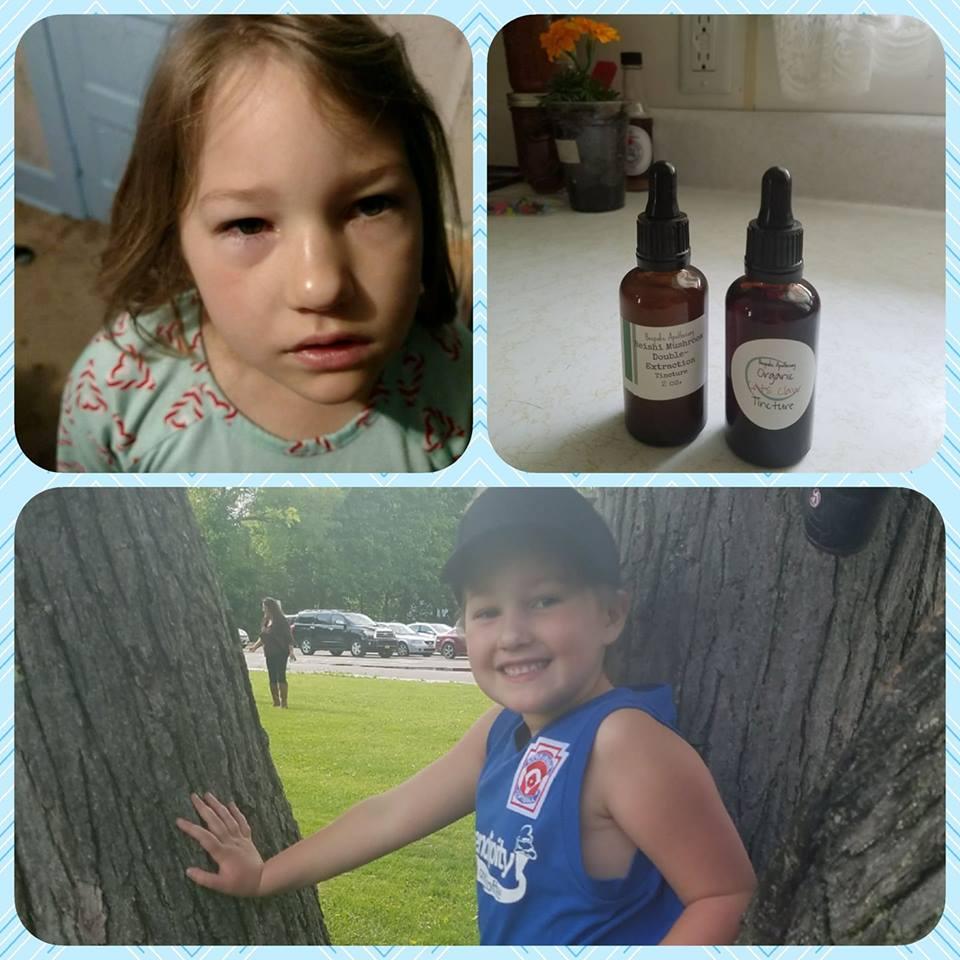 Herbal Seasonal Allergy Fighting Kit - lots of options!