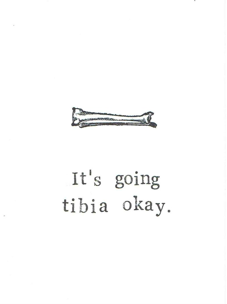 Image of It's Going Tibia Okay Funny Get Well Soon Broken Leg Medical Humor Anatomy Pun
