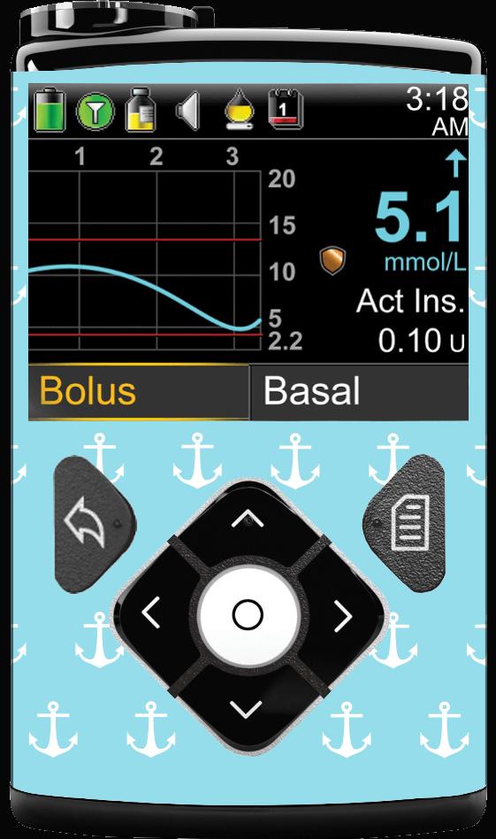 Image of Anchor Medtronic Minimed 630G, 640G, 670G