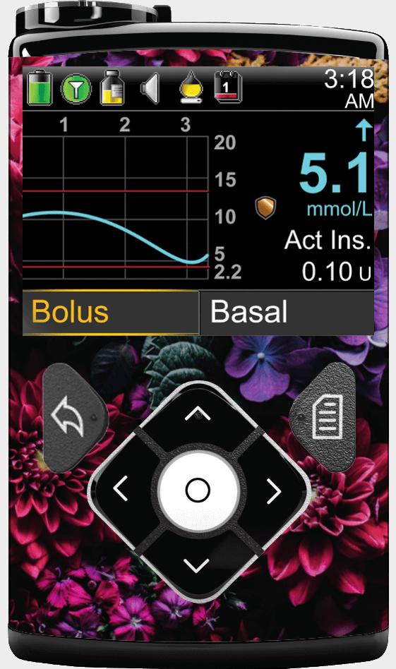 Image of Hydrangea Blossoms Medtronic Minimed 630G, 640G, 670G