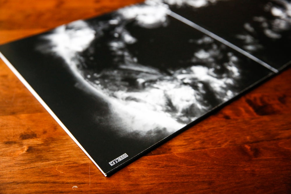 Image of ABYSSOLUTE TRANSFINITE FIRST PRESS VINYL
