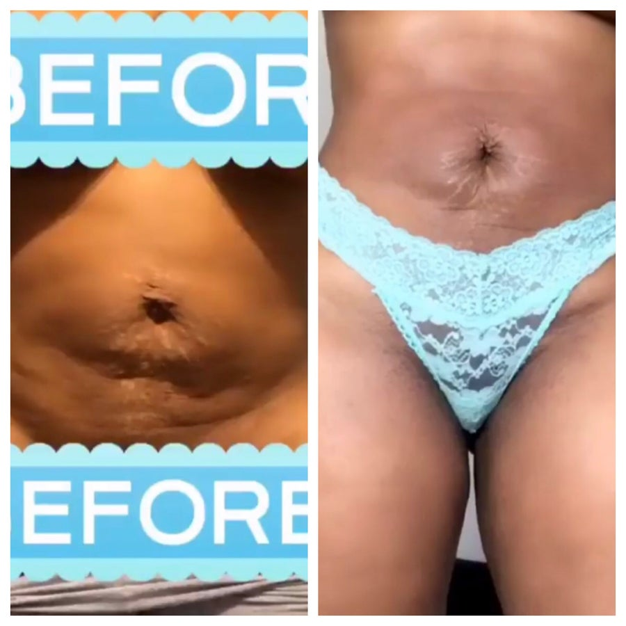 Image of B.K tighting and shrinking tummy patch