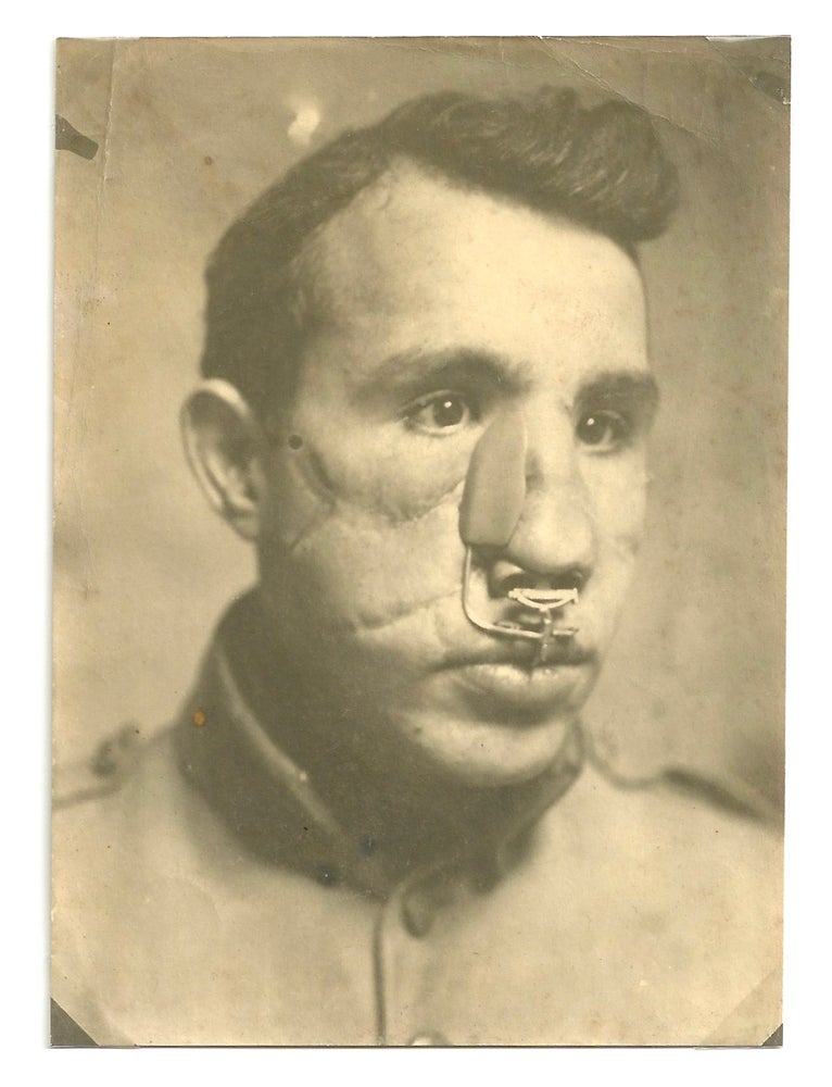 Image of WWI: Gueule cassée, a rare portrait of a wounded soldier, 1918