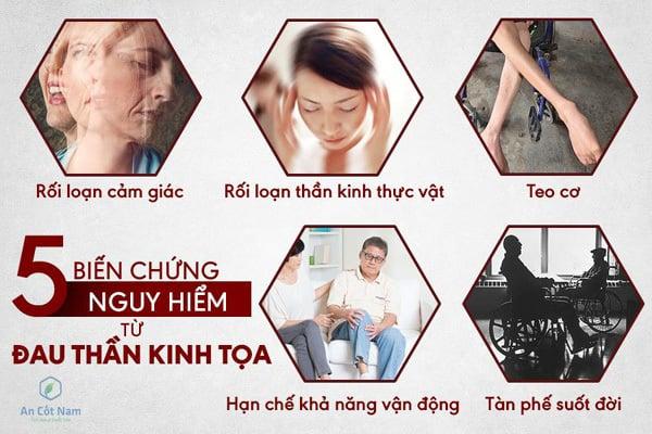 Image of Chữa đau thần kinh tọa ở đâu tốt nhất tại Hà Nội 2019