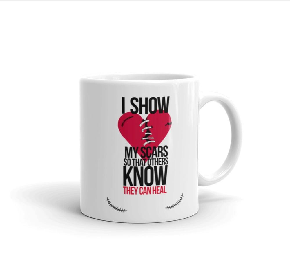 Image of I show my scars coffee/tea ceramic mug 11oz with Inspirational quote