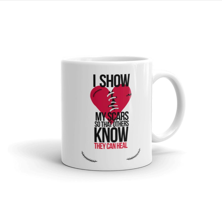 Image of I show my scars coffee/tea ceramic mug 11oz with Inspirational quote