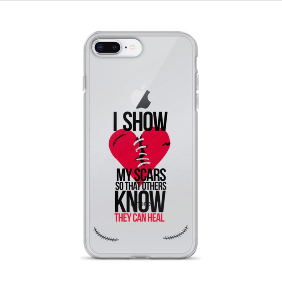 Image of I show my scars iPhone cases