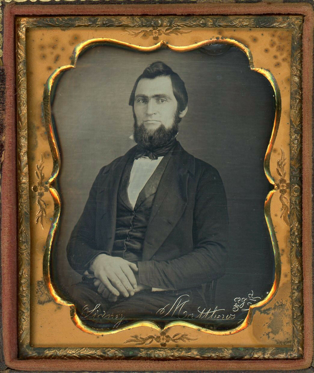 Image of rare Etched daguerreotype: 'Sidney Matthews Age 32, ca. 1855
