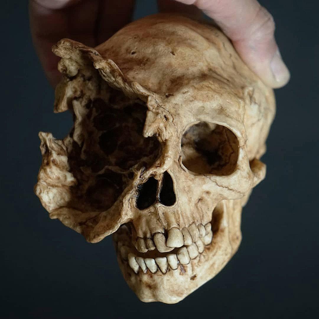Exploded Skull Sfxatlas