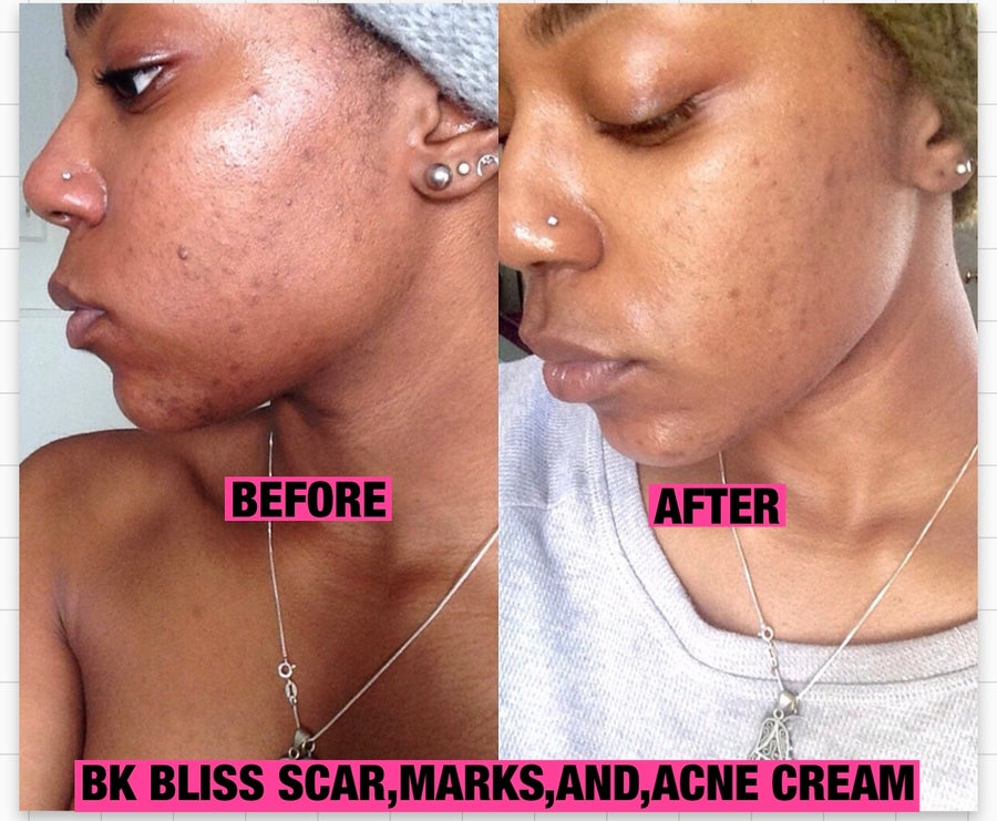 Image of BK pigmentation and dark spot cream