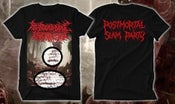 Image of MYOCARDIAL INFARCTION COMBOPACK 5 CD, HOODIE AND COVER ART T-SHIRT