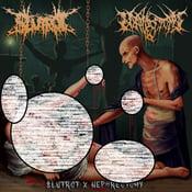 Image of SLUTROT/NEPHRECTOMY-SPLIT MCD