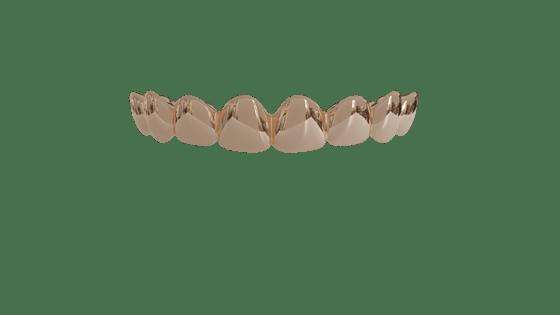 Image of 8 Top Teeth Solid 10k Gold