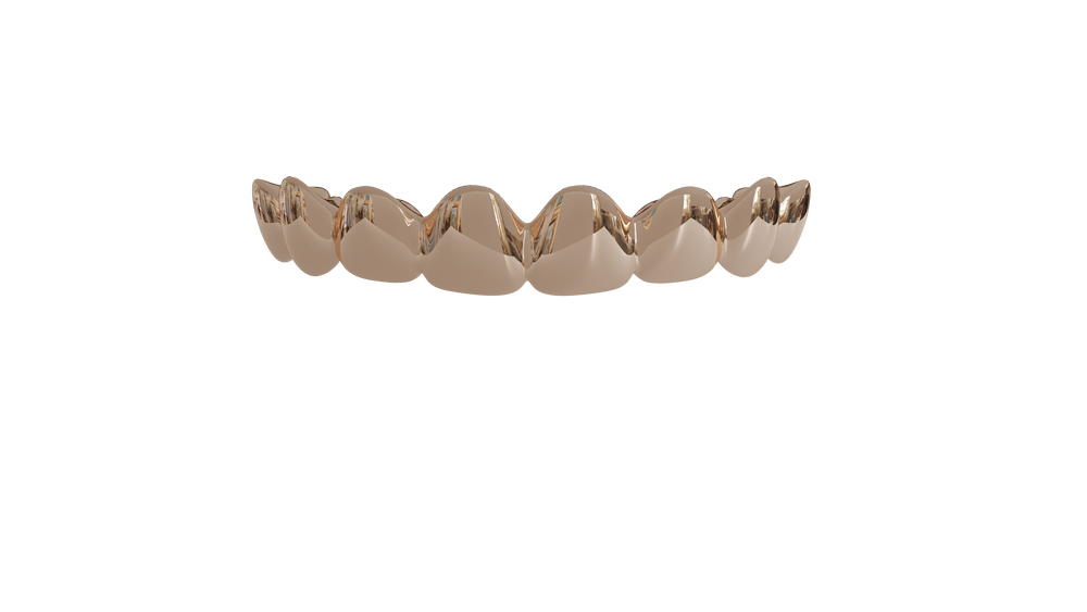 Image of 8 Top Teeth Solid 14k Gold Grills