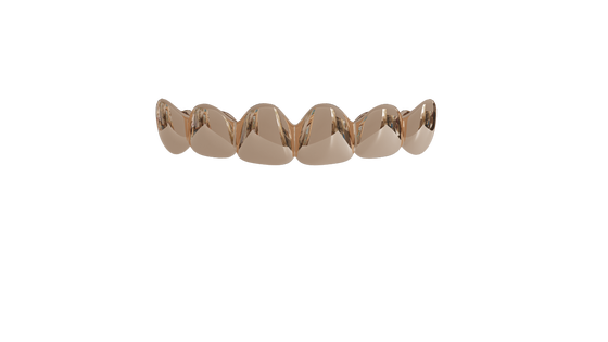 Image of 6 Top Teeth Solid 10k Gold Grills