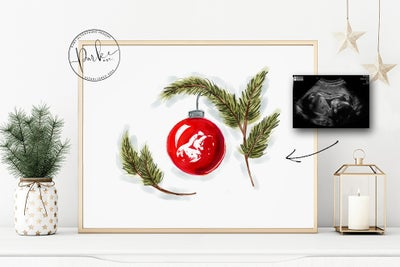 Image of Watercolour Ultrasound Digital File (Christmas Edition)
