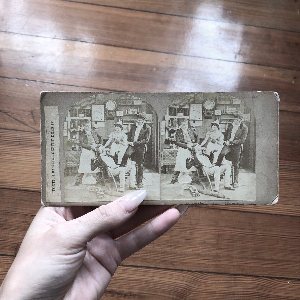 Image of Tooth Extraction Stereoscope Card