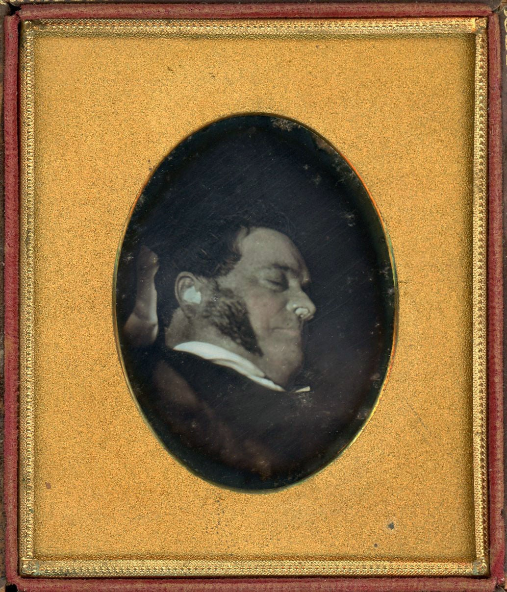 Image of post mortem daguerreotype of a man with ear and nose plugs