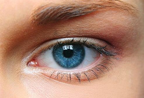 Image of Eye Laser Surgery