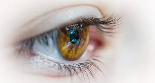 Image of Cataract Surgery
