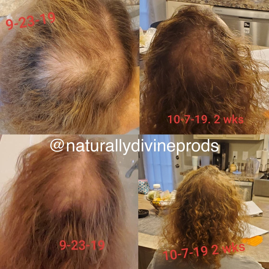 Image of Extreme Hair Regrowth Elixir Systems