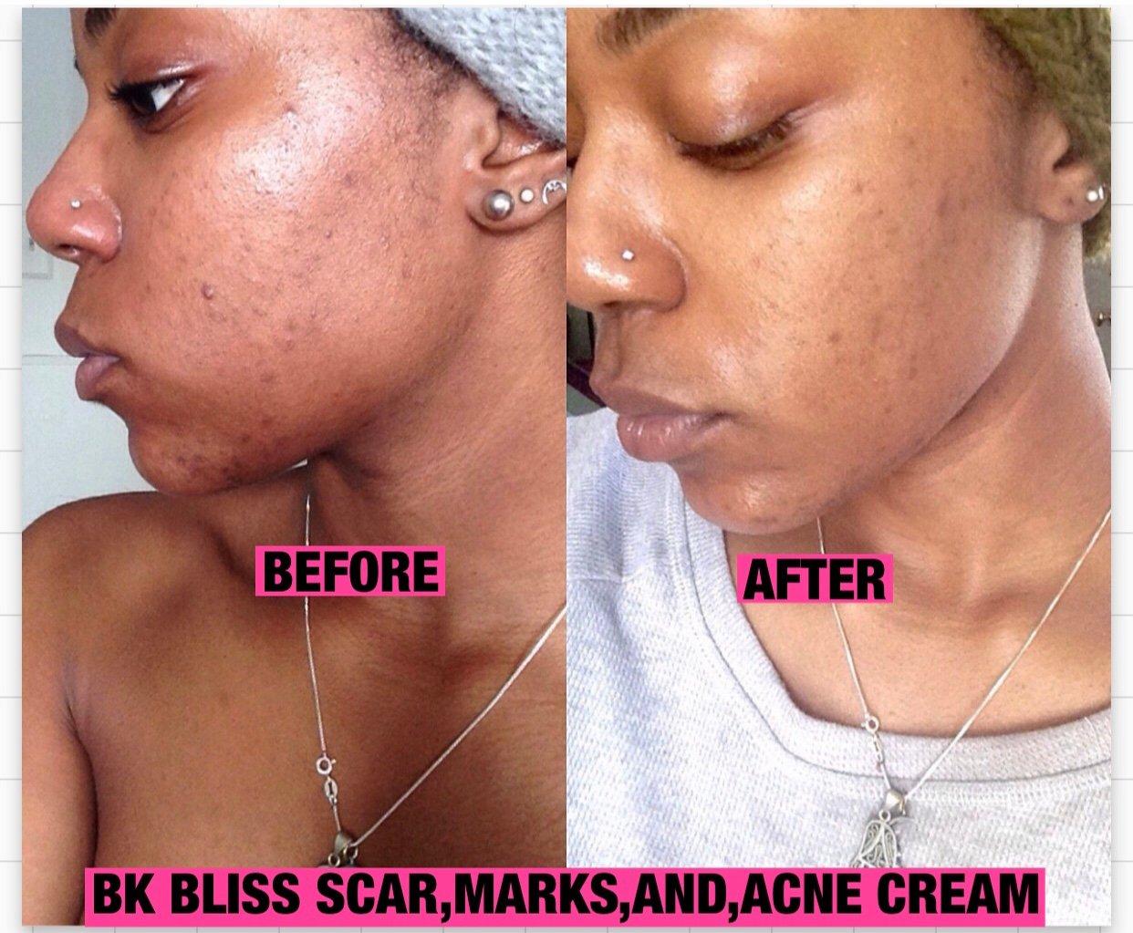 Image of B.K Bliss bleaching cream