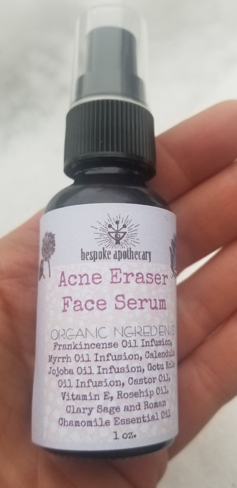 Image of ACNE ERASER Face Serum and Spot treatment