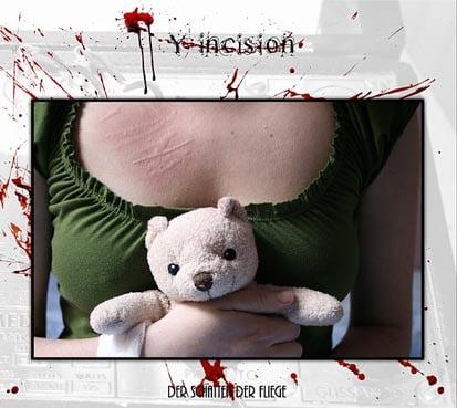 """Image of Y-incision """"Der Schatten Der Fliege"""""""