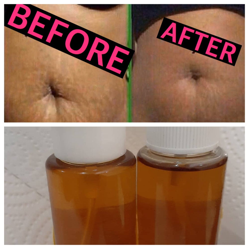 Image of BK Bliss Stretch Mark & Scar Oil