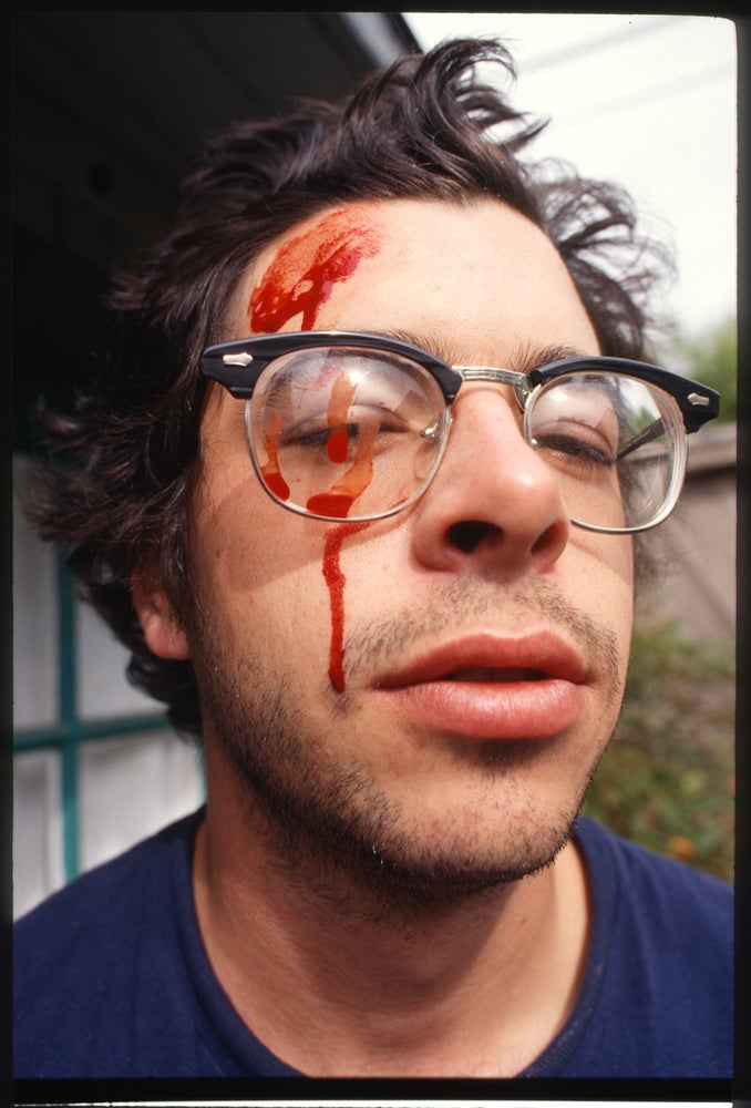 Dave Carnie, crowbar accident while framing a photo -