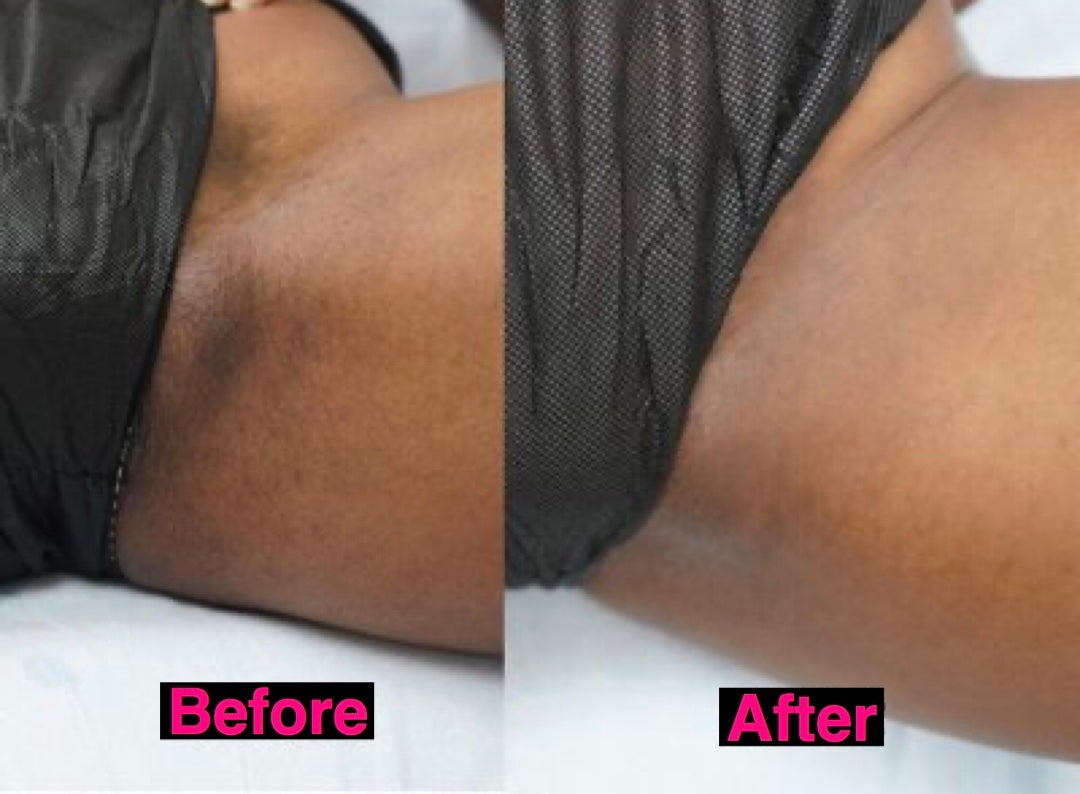 Image of BK Bliss Thigh Discoloration Cream