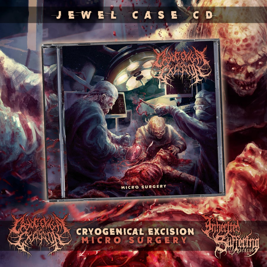 Image of Cryogenical Excision - Micro Surgery - Jewel Case CD