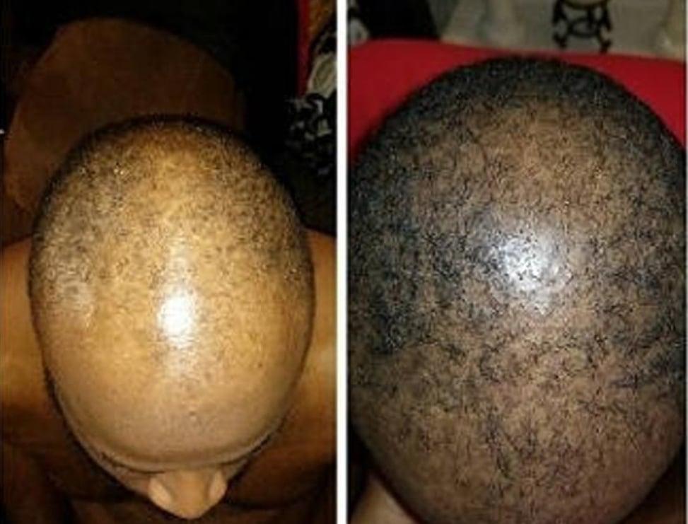 Image of Growth Envy Hair Serum