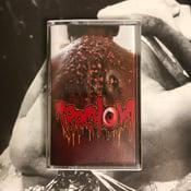 "Image of Trachoma ""Parasite Worm Infestation"" Cassette"