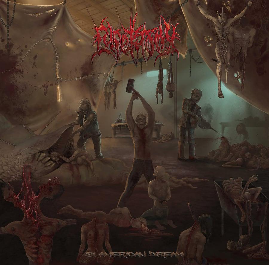 Image of Lypektomy - Slamerican Dream CD