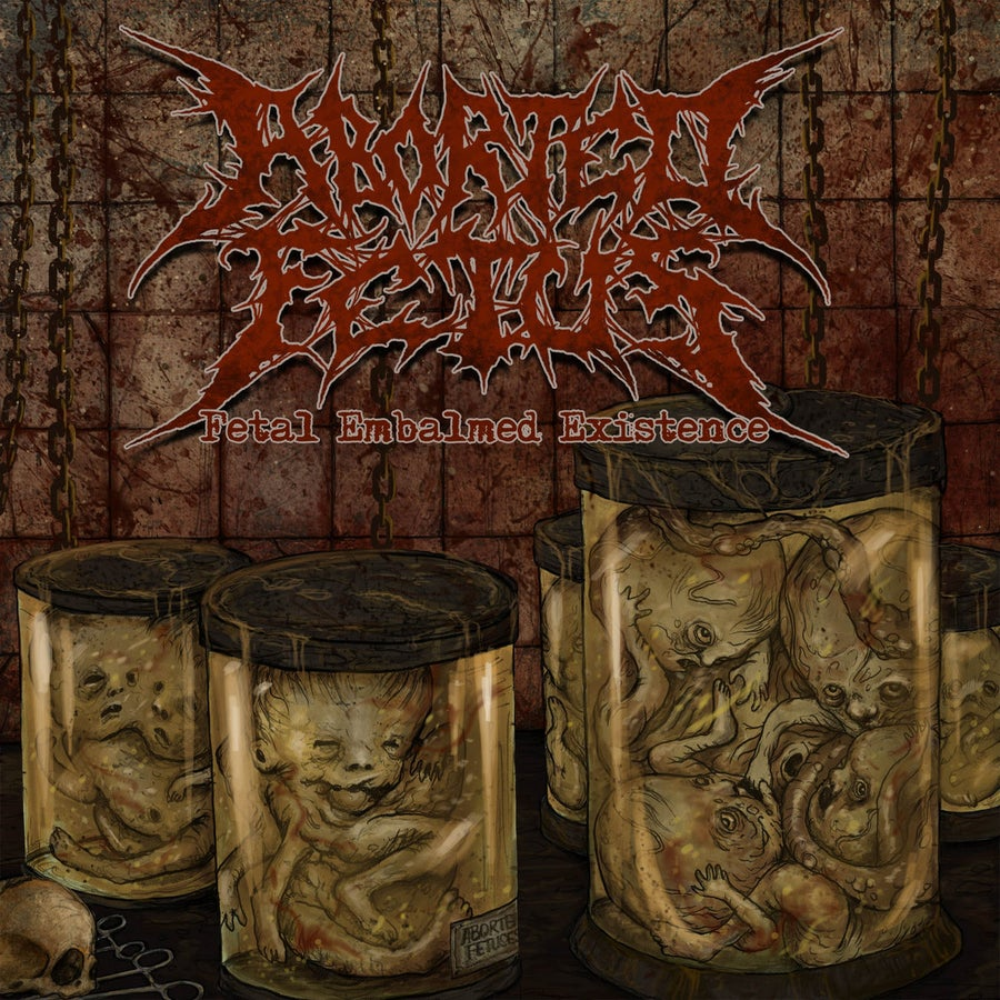 Image of Aborted Fetus - Fetal Embalmed Existence CD