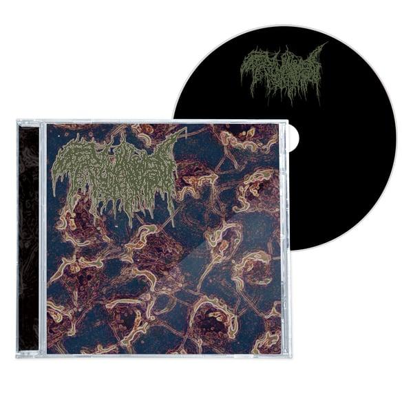 """Image of TRICHOMONIASIS """"TERMINAL INVERSION"""" CD"""