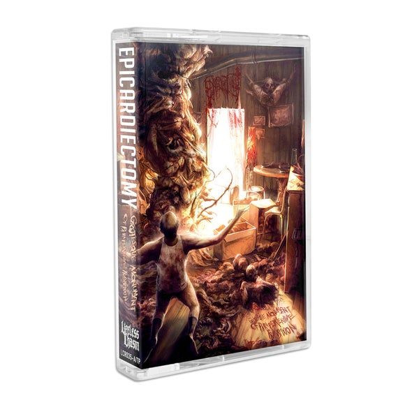 """Image of EPICARDIECTOMY """"GROTESQUE MONUMENT OF PARAPERVERSIVE TRANSFIXION"""" CASSETTE"""