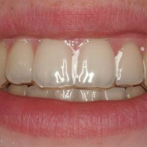 Temporary Replacement tooth in Crystal Clear Retainer
