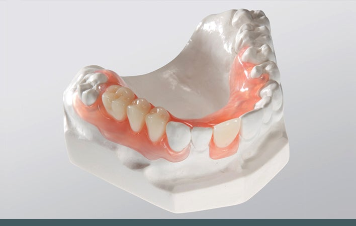 Upper Valplast Flexible partial