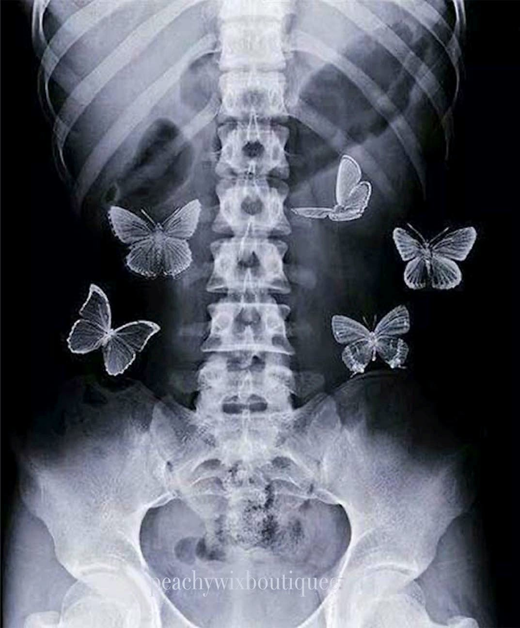Image of Butterflies in My Stomach