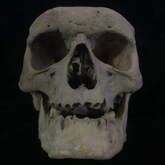 Image of Human Skull